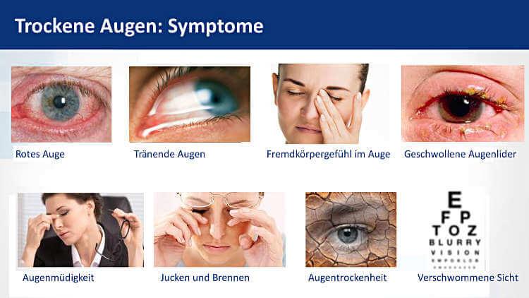 Symptome Trockene Augen